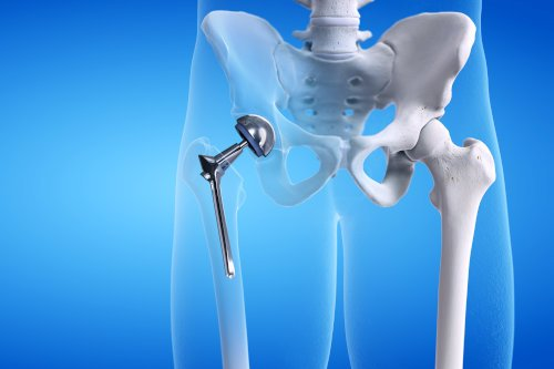 Machining medical parts: 3D rendering of a metal hip replacement